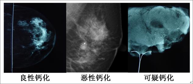 如何读懂乳腺钼靶报告