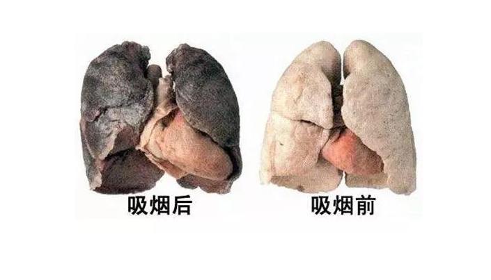 肺癌晚期有什么症状_肺癌的晚期症状介绍