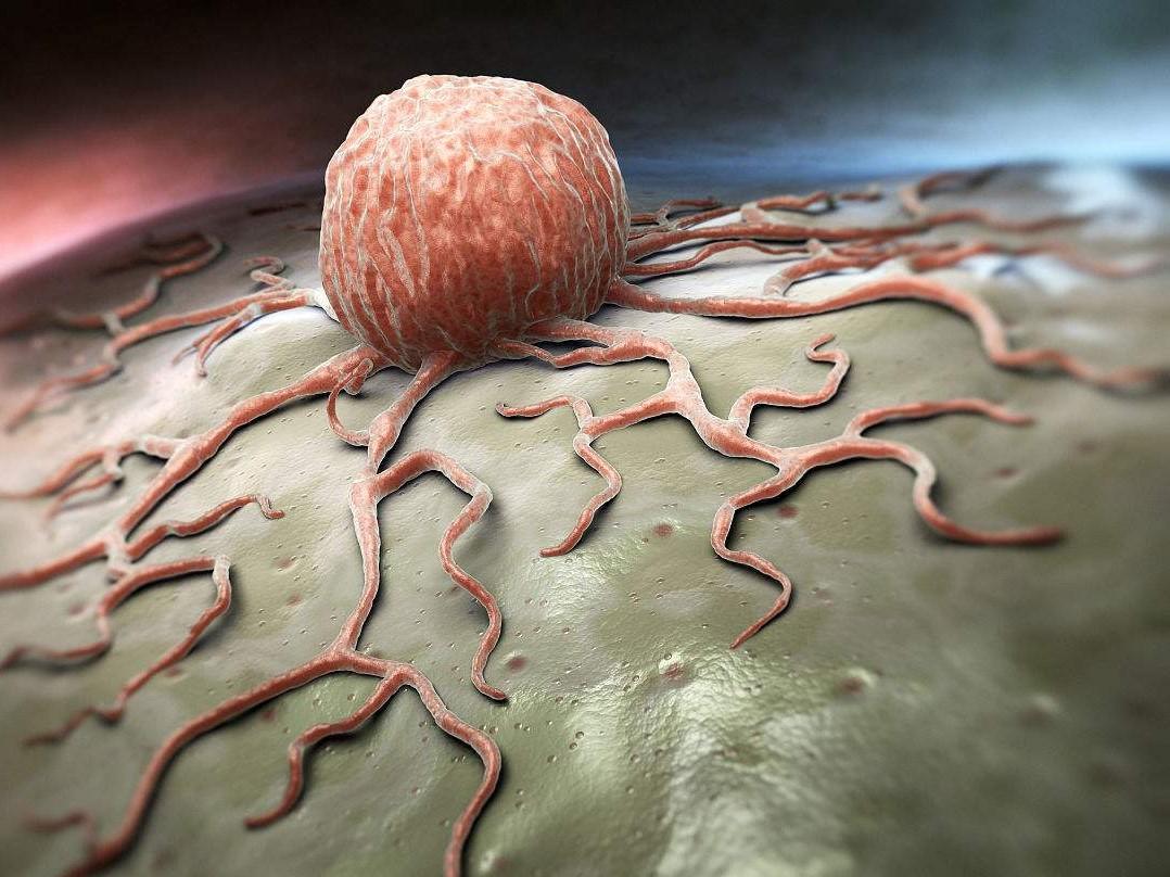 身上出现哪些肿块可能是癌症先兆?出现这5大特征需要引起注意!