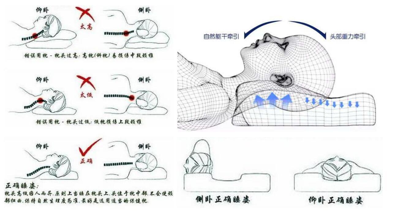 以仰卧,侧卧睡姿为主,趴着睡觉很容易造成颈椎关节扭转过度和颈部
