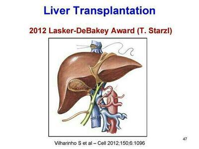 以求达到同符合米兰标准的肝移植术后病人相同的生存率.