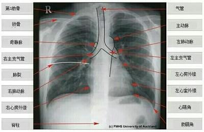 右膈膨隆胸片