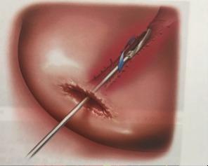 宫颈管取样方法: 螺旋式,锄地式,细胞刷取样示意图 图 5 螺旋式:通过