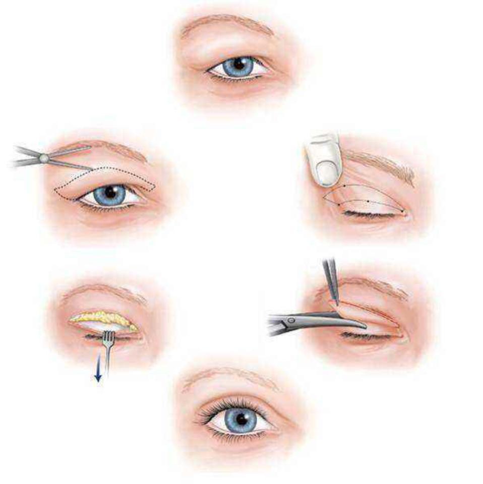 生殖整形手术案例图片