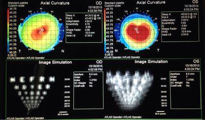 角膜交联治疗的原理_角膜塑形镜原理图片
